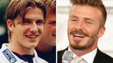 10 celebrit s nejdražším usměvem