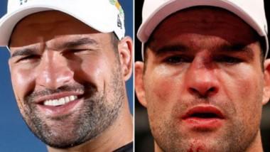 Obličeje bojovníku UFC do a po boji
